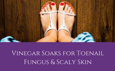 Vinegar Soaks for Toenail Fungus & Scaly Skin