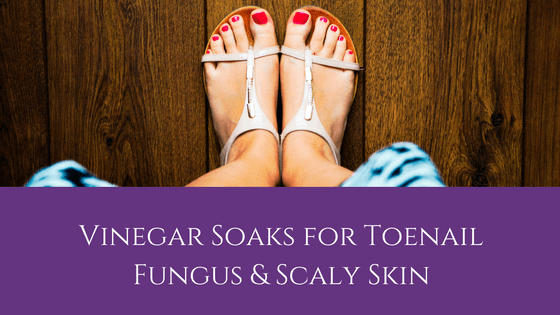Vinegar Soaks for Toenail Fungus & Scaly Skin